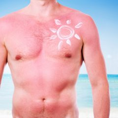 """Plastic Surgeon Warns: """"Sunburn Tattoos' Could Be the Worst Viral Challenge Ever!!"""